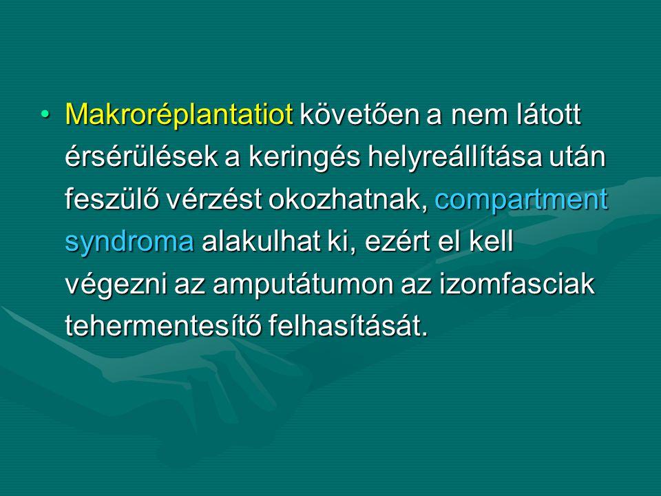 Makroréplantatiot követően a nem látottMakroréplantatiot követően a nem látott érsérülések a keringés helyreállítása után érsérülések a keringés helyreállítása után feszülő vérzést okozhatnak, compartment feszülő vérzést okozhatnak, compartment syndroma alakulhat ki, ezért el kell syndroma alakulhat ki, ezért el kell végezni az amputátumon az izomfasciak végezni az amputátumon az izomfasciak tehermentesítő felhasítását.