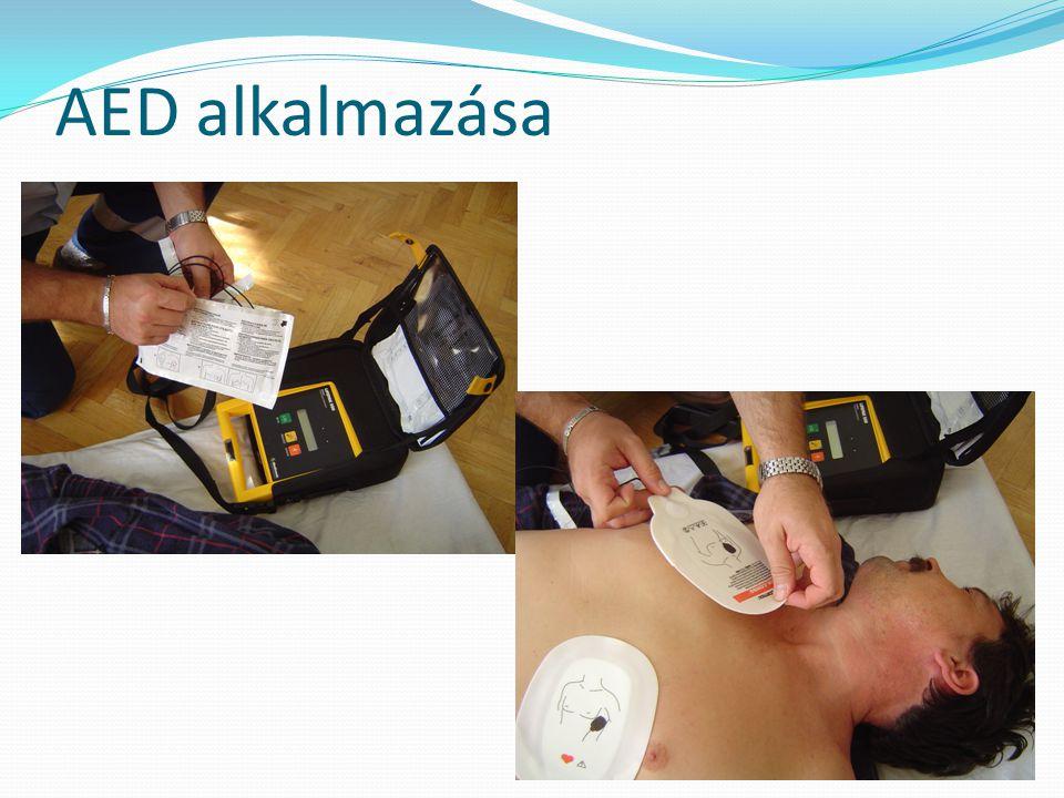 AED alkalmazása
