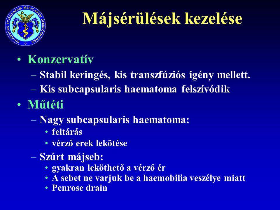 Májsérülések kezelése Konzervatív –Stabil keringés, kis transzfúziós igény mellett. –Kis subcapsularis haematoma felszívódik Műtéti –Nagy subcapsulari