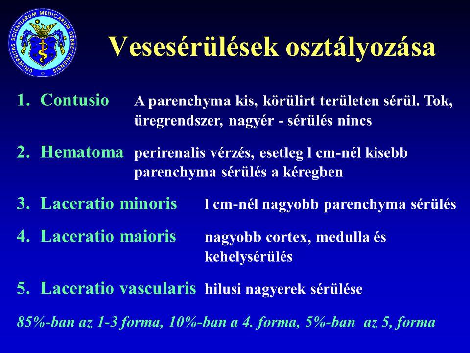 Vesesérülések osztályozása 1.Contusio A parenchyma kis, körülirt területen sérül. Tok, üregrendszer, nagyér - sérülés nincs 2.Hematoma perirenalis vér