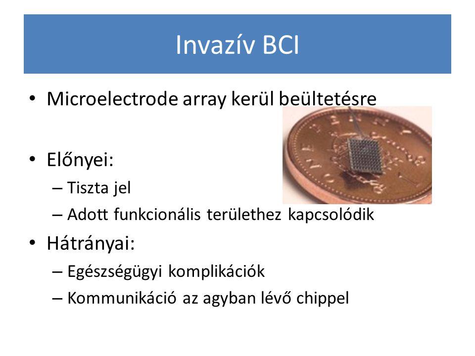 Invazív BCI Microelectrode array kerül beültetésre Előnyei: – Tiszta jel – Adott funkcionális területhez kapcsolódik Hátrányai: – Egészségügyi komplik