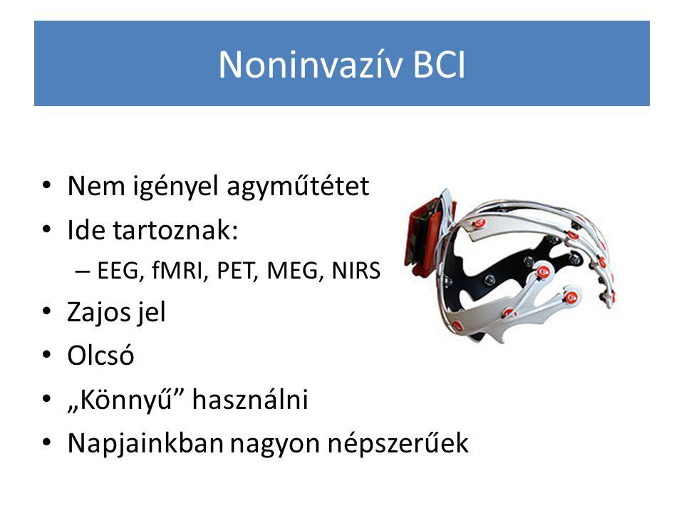 """Noninvazív BCI Nem igényel agyműtétet Ide tartoznak: – EEG, fMRI, PET, MEG, NIRS Zajos jel Olcsó """"Könnyű"""" használni Napjainkban nagyon népszerűek"""