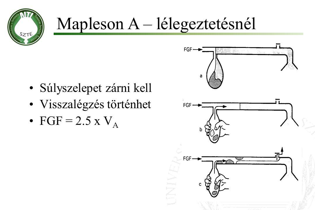 Súlyszelepet zárni kell Visszalégzés történhet FGF = 2.5 x V A Mapleson A – lélegeztetésnél