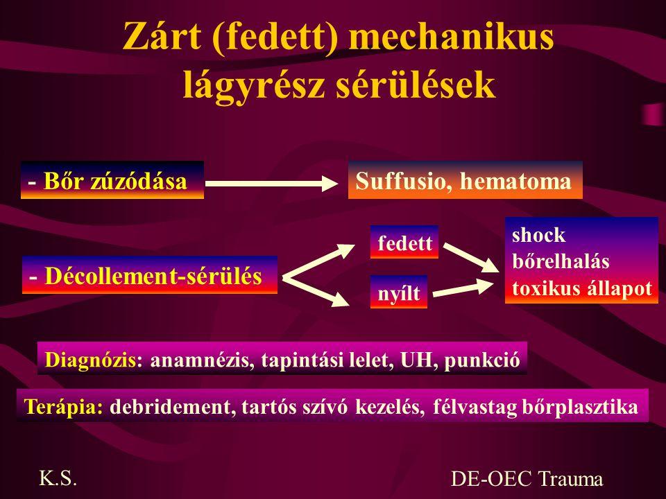 Zárt (fedett) mechanikus lágyrész sérülések - Bőr zúzódásaSuffusio, hematoma - Décollement-sérülés fedett nyílt Diagnózis: anamnézis, tapintási lelet,