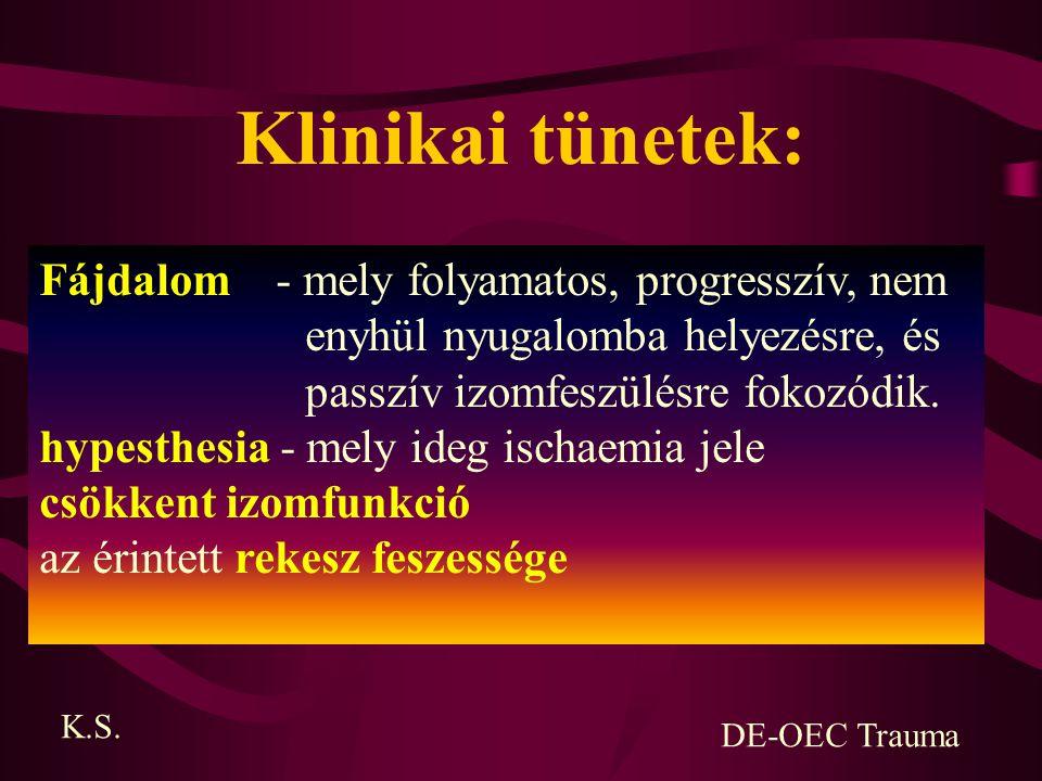 Klinikai tünetek: Fájdalom - mely folyamatos, progresszív, nem enyhül nyugalomba helyezésre, és passzív izomfeszülésre fokozódik. hypesthesia - mely i