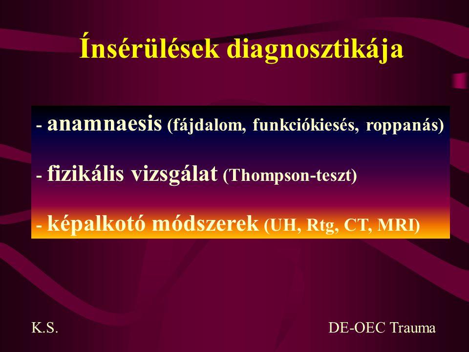 Ínsérülések diagnosztikája - anamnaesis (fájdalom, funkciókiesés, roppanás) - fizikális vizsgálat (Thompson-teszt) - képalkotó módszerek (UH, Rtg, CT,