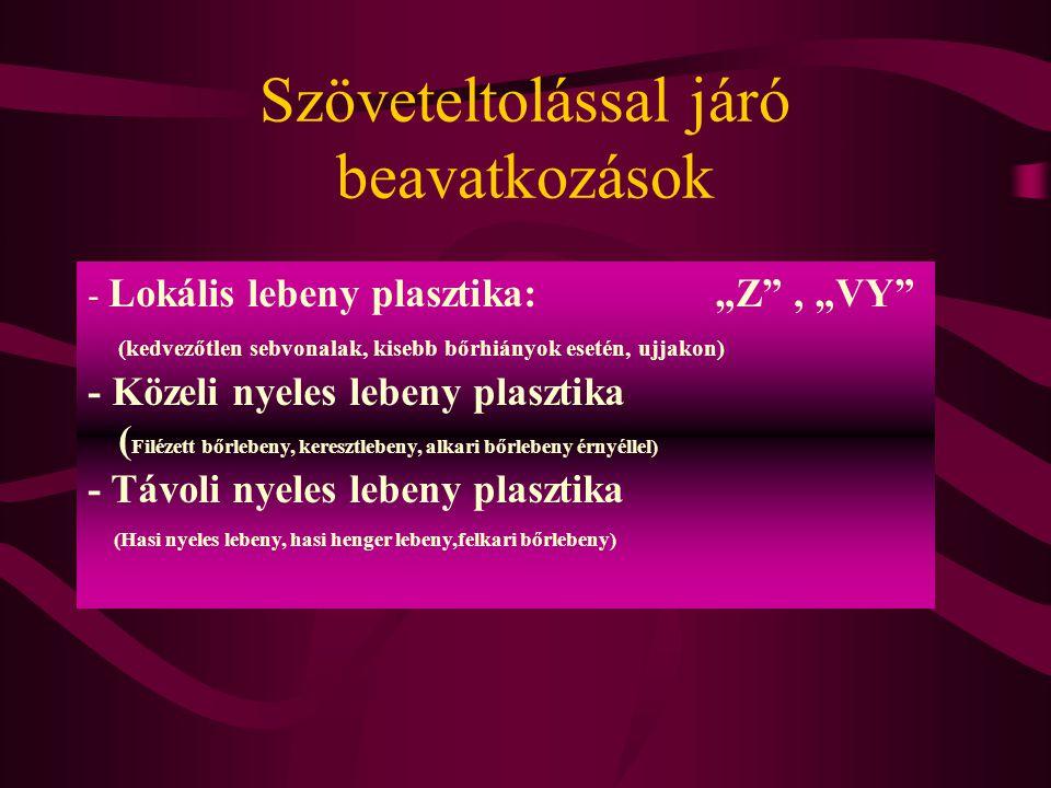 """Szöveteltolással járó beavatkozások - Lokális lebeny plasztika: """"Z"""", """"VY"""" (kedvezőtlen sebvonalak, kisebb bőrhiányok esetén, ujjakon) - Közeli nyeles"""