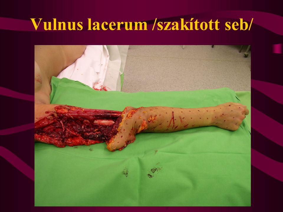 Plasztikai sebészet alapelvei A beavatkozás sikere szempontjából fontos : - atraumatikus műtétechnika - helyes metszésvezetés - gondos vérzéscsillapítás - korszerű sebzárás - szükség esetén rögzítés