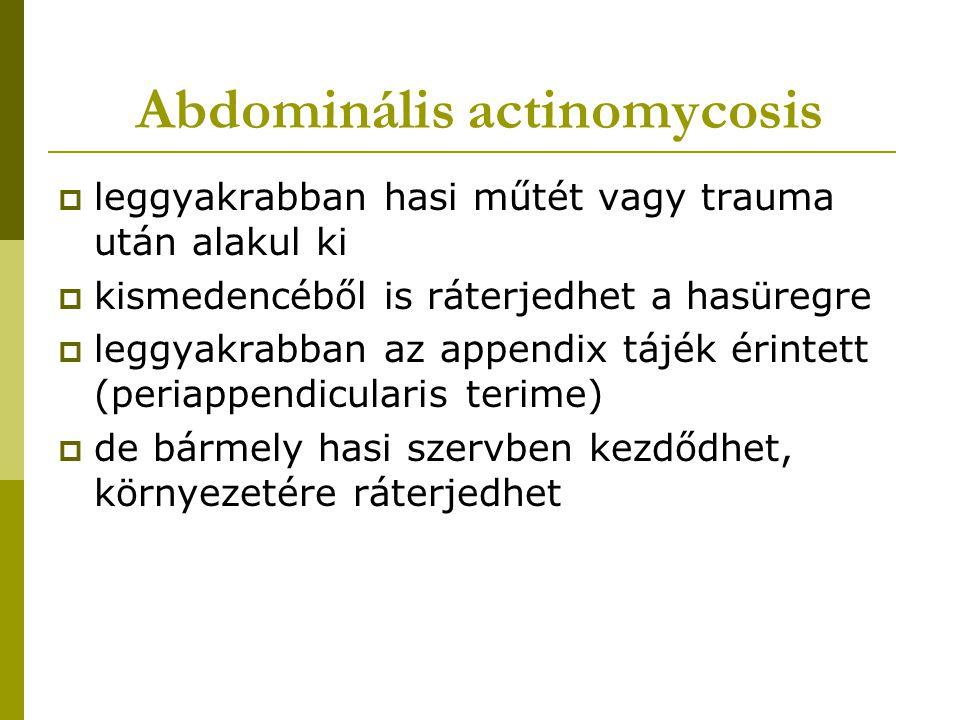 Abdominális actinomycosis  leggyakrabban hasi műtét vagy trauma után alakul ki  kismedencéből is ráterjedhet a hasüregre  leggyakrabban az appendix tájék érintett (periappendicularis terime)  de bármely hasi szervben kezdődhet, környezetére ráterjedhet