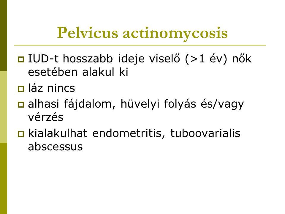 Pelvicus actinomycosis  IUD-t hosszabb ideje viselő (>1 év) nők esetében alakul ki  láz nincs  alhasi fájdalom, hüvelyi folyás és/vagy vérzés  kia