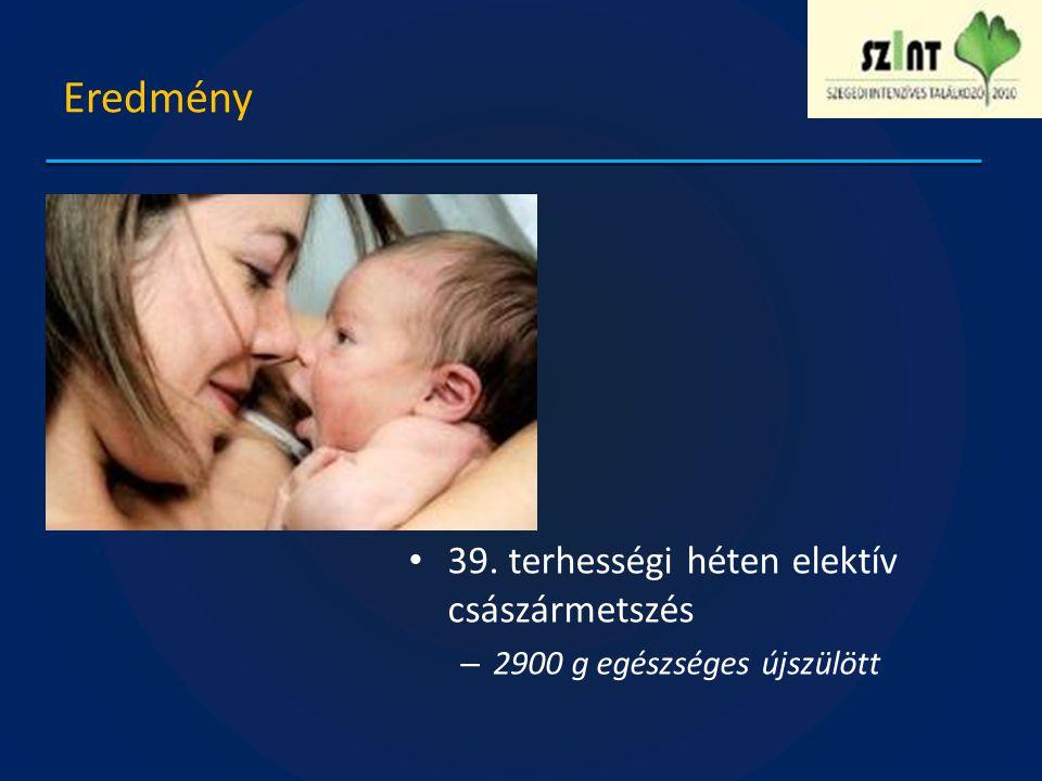 Eredmény 39. terhességi héten elektív császármetszés – 2900 g egészséges újszülött