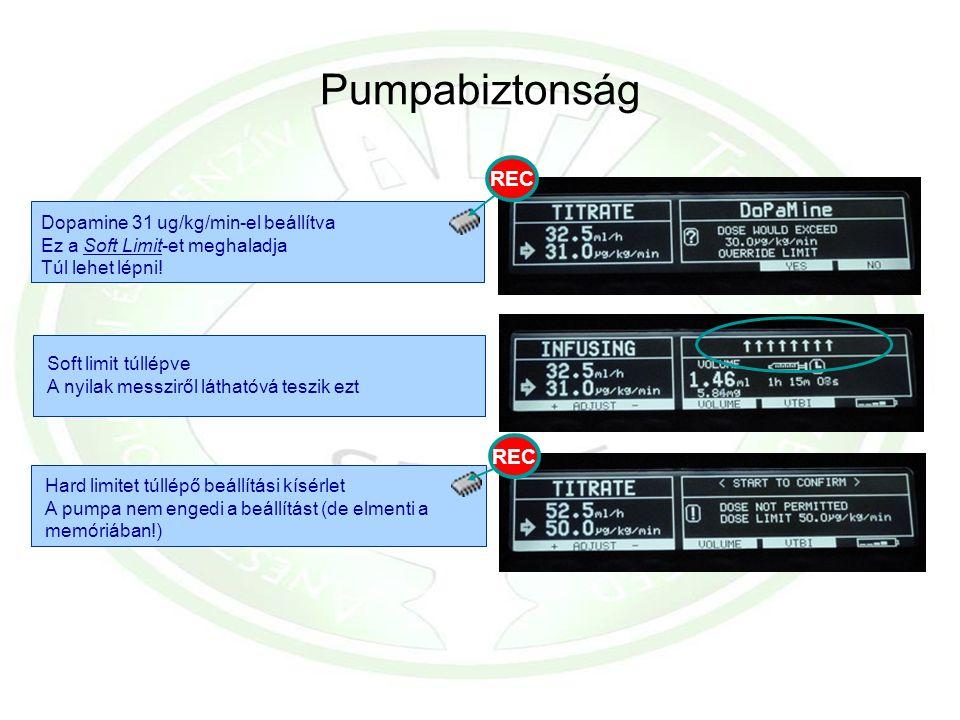 Pumpabiztonság Soft limit túllépve A nyilak messziről láthatóvá teszik ezt Hard limitet túllépő beállítási kísérlet A pumpa nem engedi a beállítást (d