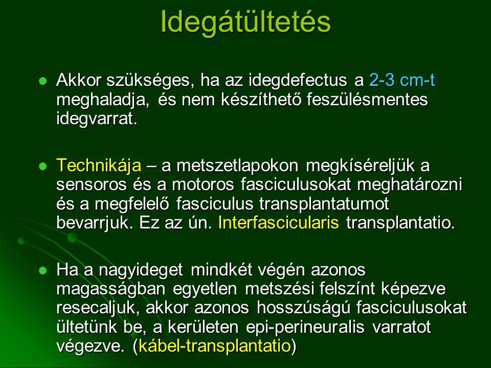 Idegátültetés Akkor szükséges, ha az idegdefectus a 2-3 cm-t meghaladja, és nem készíthető feszülésmentes idegvarrat.