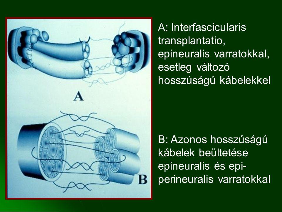A: Interfascicularis transplantatio, epineuralis varratokkal, esetleg változó hosszúságú kábelekkel B: Azonos hosszúságú kábelek beültetése epineuralis és epi- perineuralis varratokkal