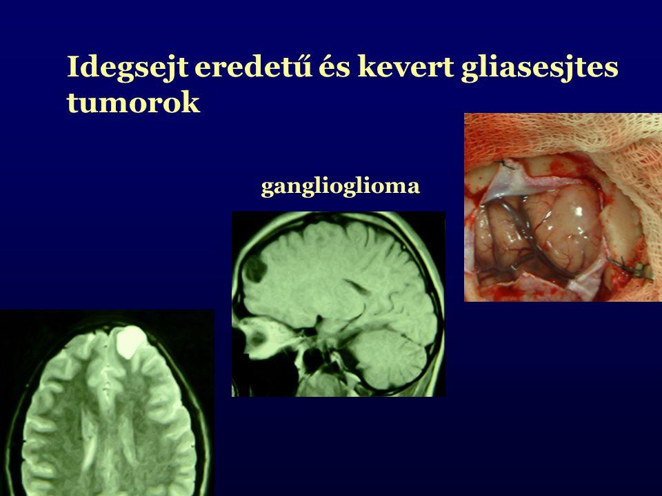 Idegsejt eredetű és kevert gliasesjtes tumorok ganglioglioma