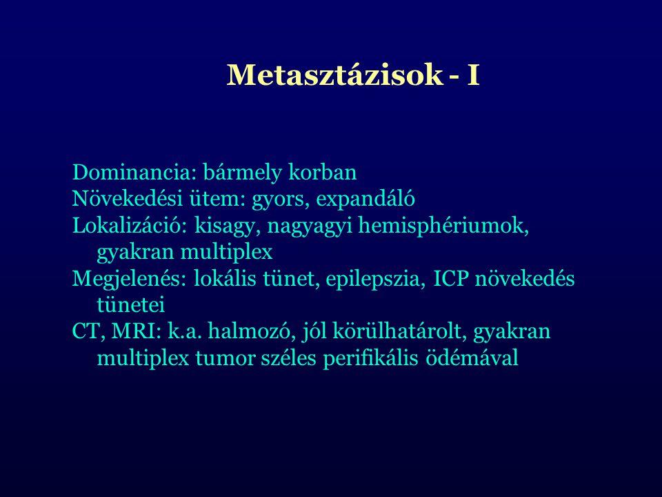 Metasztázisok - I Dominancia: bármely korban Növekedési ütem: gyors, expandáló Lokalizáció: kisagy, nagyagyi hemisphériumok, gyakran multiplex Megjele