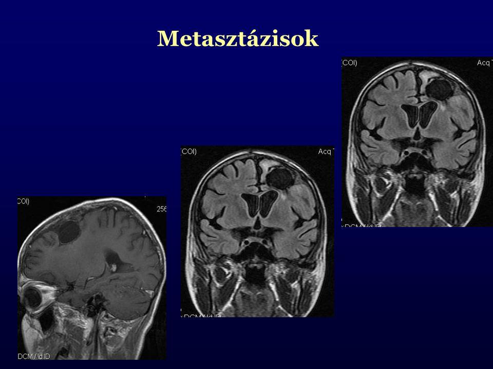 Metasztázisok