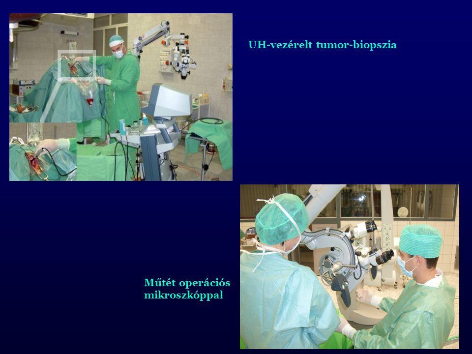 UH-vezérelt tumor-biopszia Műtét operációs mikroszkóppal
