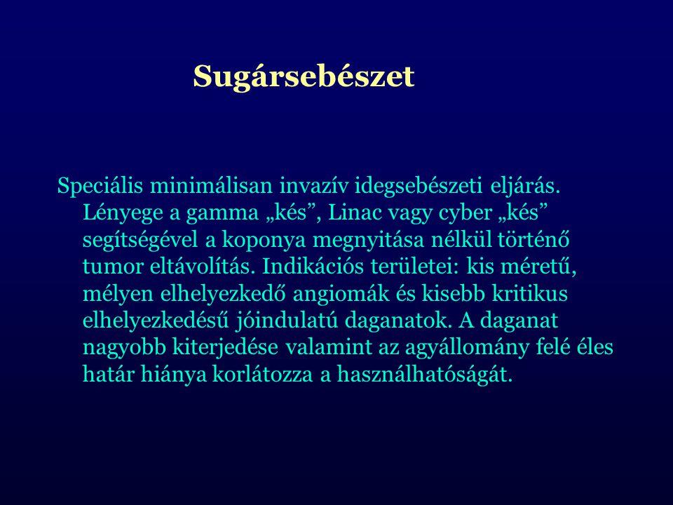 Sugársebészet Speciális minimálisan invazív idegsebészeti eljárás.