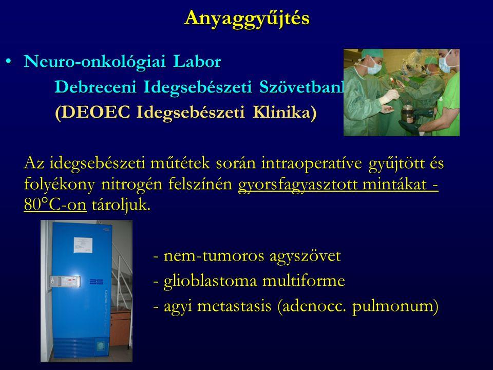 Anyaggyűjtés Neuro-onkológiai LaborNeuro-onkológiai Labor Debreceni Idegsebészeti Szövetbank (DEOEC Idegsebészeti Klinika) Az idegsebészeti műtétek során intraoperatíve gyűjtött és folyékony nitrogén felszínén gyorsfagyasztott mintákat - 80°C-on tároljuk.