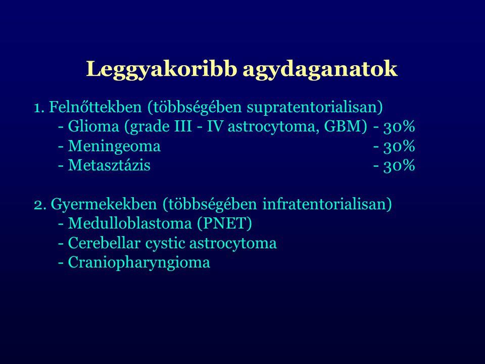 Leggyakoribb agydaganatok 1. Felnőttekben (többségében supratentorialisan) - Glioma (grade III - IV astrocytoma, GBM)- 30% - Meningeoma- 30% - Metaszt