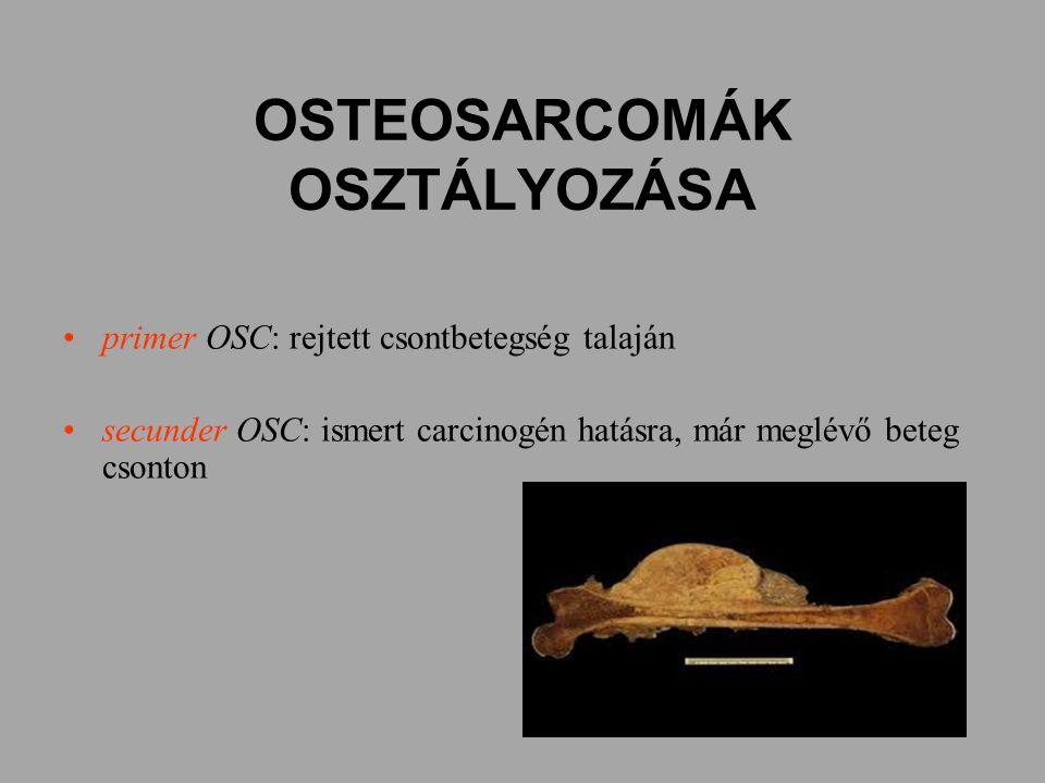 OSTEOSARCOMÁK OSZTÁLYOZÁSA primer OSC: rejtett csontbetegség talaján secunder OSC: ismert carcinogén hatásra, már meglévő beteg csonton