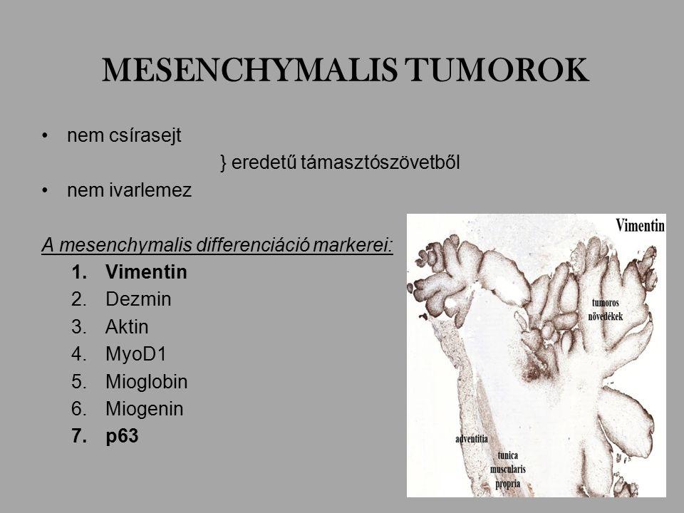 MESENCHYMALIS TUMOROK nem csírasejt } eredetű támasztószövetből nem ivarlemez A mesenchymalis differenciáció markerei: 1.Vimentin 2.Dezmin 3.Aktin 4.MyoD1 5.Mioglobin 6.Miogenin 7.p63