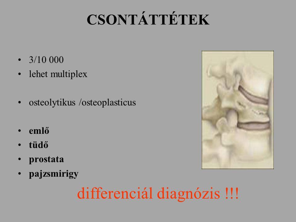 CSONTÁTTÉTEK 3/10 000 lehet multiplex osteolytikus /osteoplasticus emlő tüdő prostata pajzsmirigy differenciál diagnózis !!!