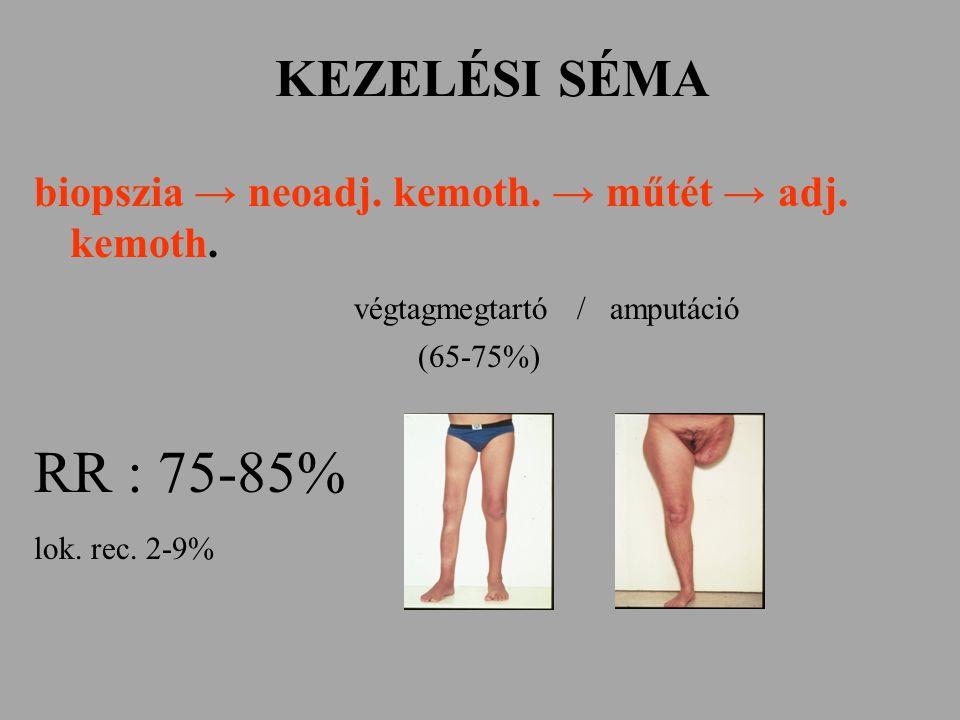 KEZELÉSI SÉMA biopszia → neoadj. kemoth. → műtét → adj. kemoth. végtagmegtartó /amputáció (65-75%) RR : 75-85% lok. rec. 2-9%