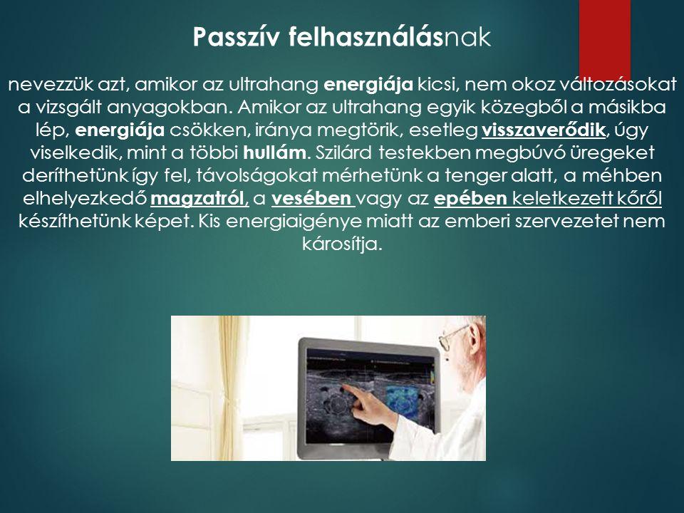 Passzív felhasználás nak nevezzük azt, amikor az ultrahang energiája kicsi, nem okoz változásokat a vizsgált anyagokban. Amikor az ultrahang egyik köz