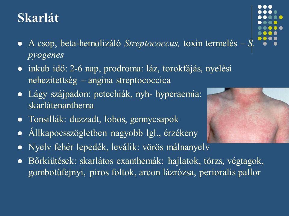 Skarlát A csop, beta-hemolizáló Streptococcus, toxin termelés – S. pyogenes inkub idő: 2-6 nap, prodroma: láz, torokfájás, nyelési nehezítettség – ang