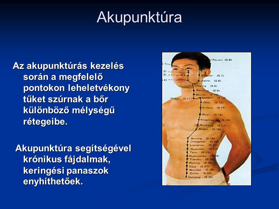 Akupunktúra Az akupunktúrás kezelés során a megfelelő pontokon leheletvékony tűket szúrnak a bőr különböző mélységű rétegeibe. Akupunktúra segítségéve