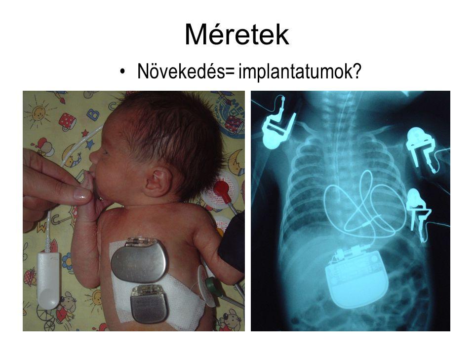 Méretek Növekedés= implantatumok