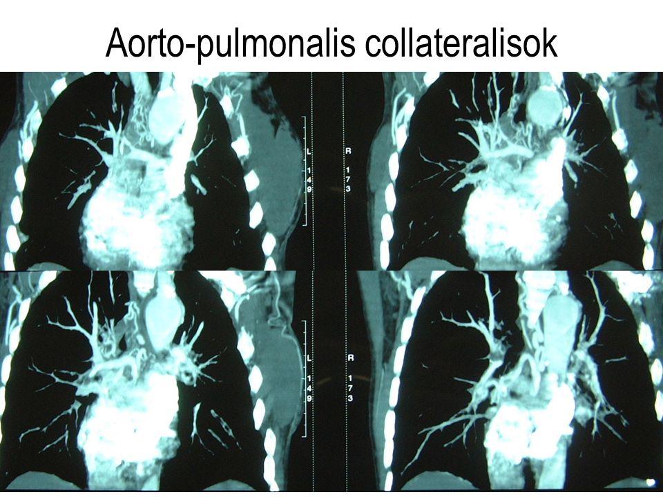 Aorto-pulmonalis collateralisok