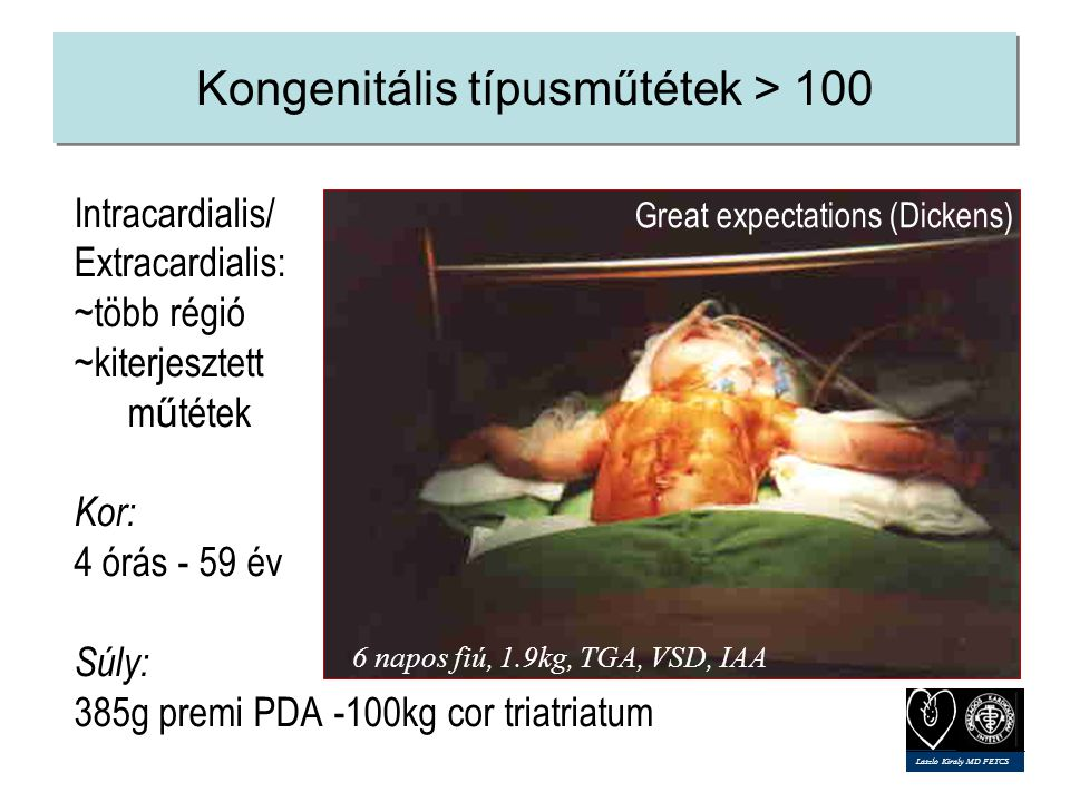 Kongenitális típusműtétek > 100 Intracardialis/ Extracardialis: ~több régió ~kiterjesztett m ű tétek Kor: 4 órás - 59 év Súly: 385g premi PDA -100kg cor triatriatum Great expectations (Dickens) 6 napos fiú, 1.9kg, TGA, VSD, IAA Laszlo Kiraly MD FETCS