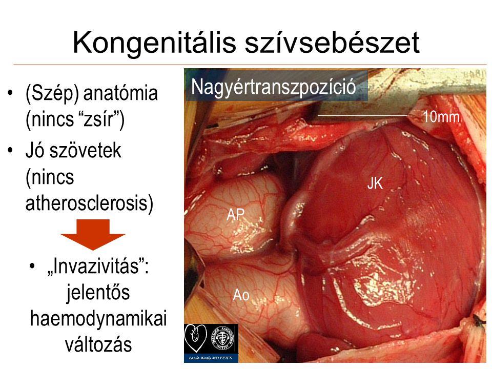 Jobboldali subaxillaris thoracotomia 21/26 5 median sternotomia CAPD, PH, 100kg, mellkas deformitás Laszlo Kiraly MD FETCS