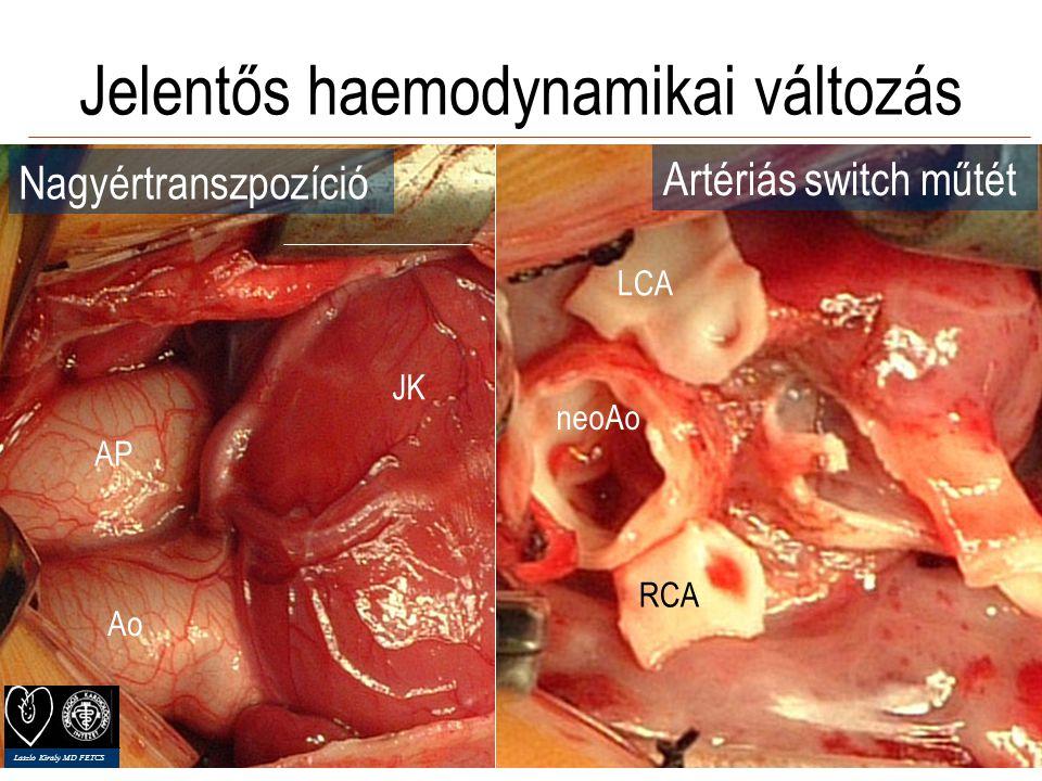 Kongenitális szívsebészet = érzékeny pathofiziológia Jelentős haemodynamikai változás Újszülöttkor Emergencia (20%) Redos: 30-45% Primér correctio vs.