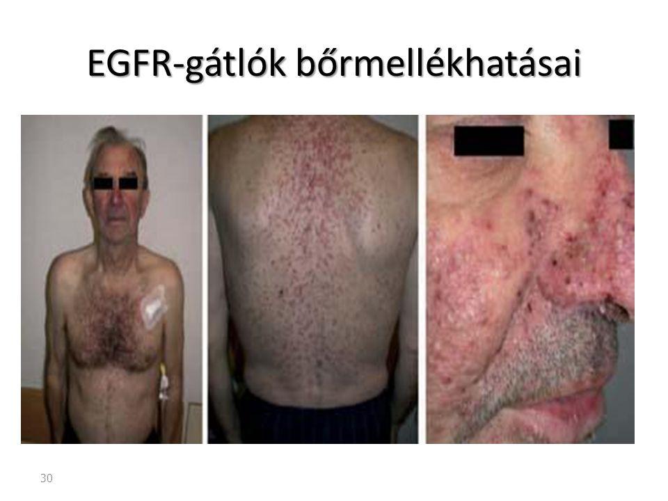 30 EGFR-gátlók bőrmellékhatásai
