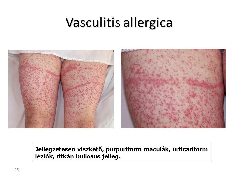 35 Vasculitis allergica Jellegzetesen viszkető, purpuriform maculák, urticariform léziók, ritkán bullosus jelleg.