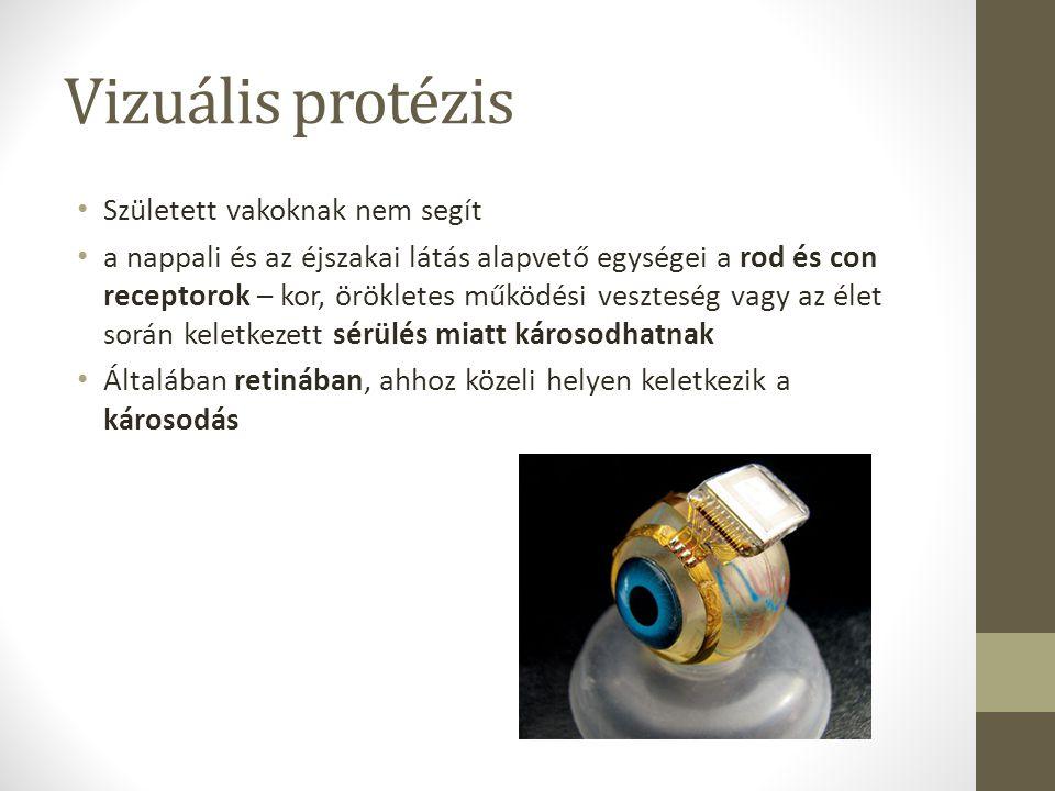 Vizuális protézis Született vakoknak nem segít a nappali és az éjszakai látás alapvető egységei a rod és con receptorok – kor, örökletes működési vesz