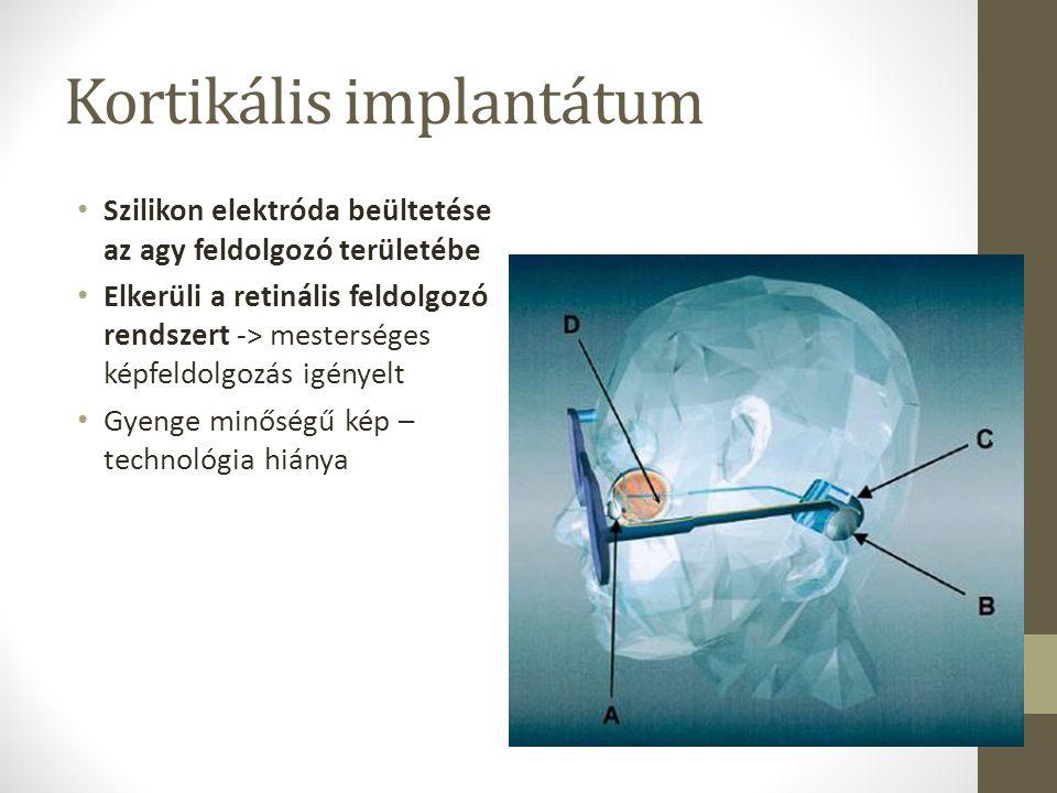 Kortikális implantátum Szilikon elektróda beültetése az agy feldolgozó területébe Elkerüli a retinális feldolgozó rendszert -> mesterséges képfeldolgo