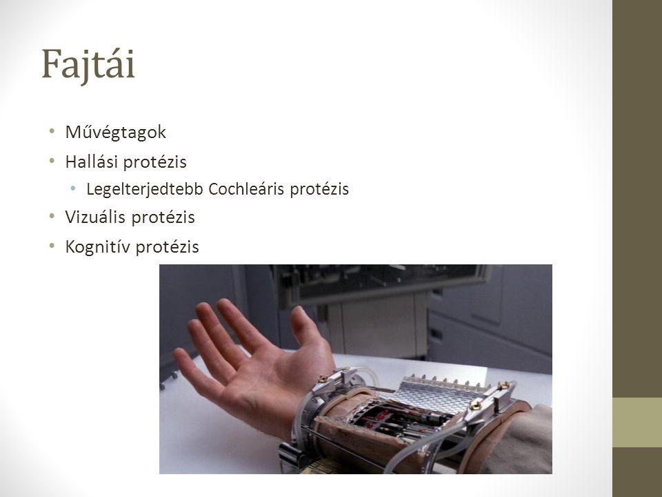 Fajtái Művégtagok Hallási protézis Legelterjedtebb Cochleáris protézis Vizuális protézis Kognitív protézis