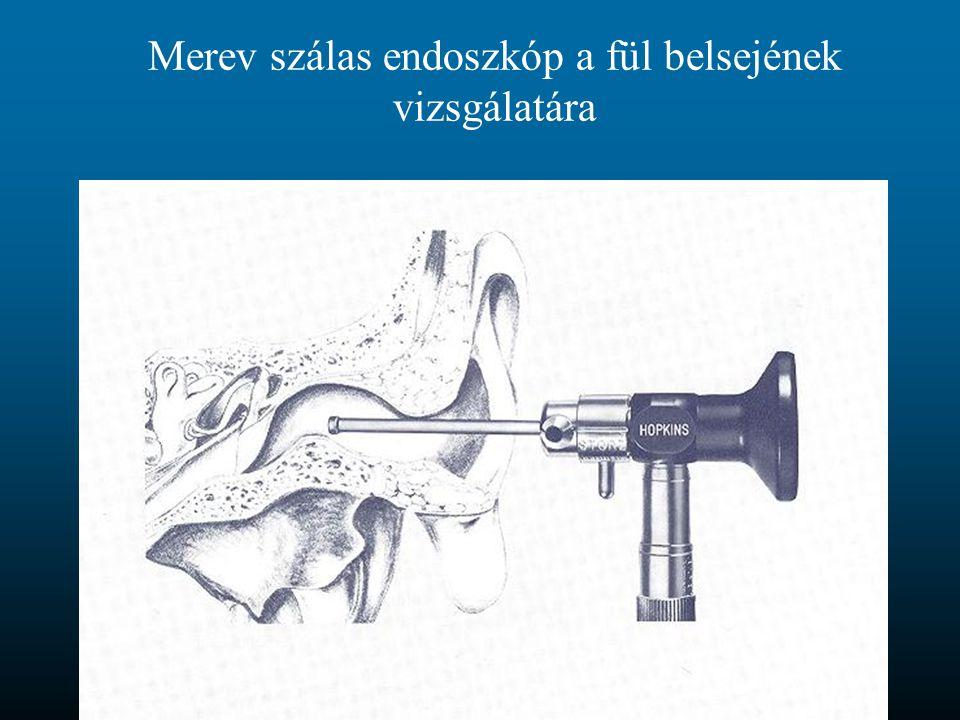 Merev szálas endoszkóp a fül belsejének vizsgálatára