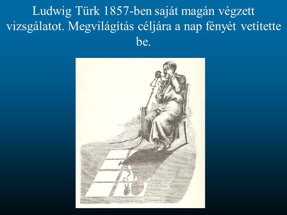 Vizsgálat Johann von Mikulicz merev szálas gasztroszkópjával (Bécs, 1881)