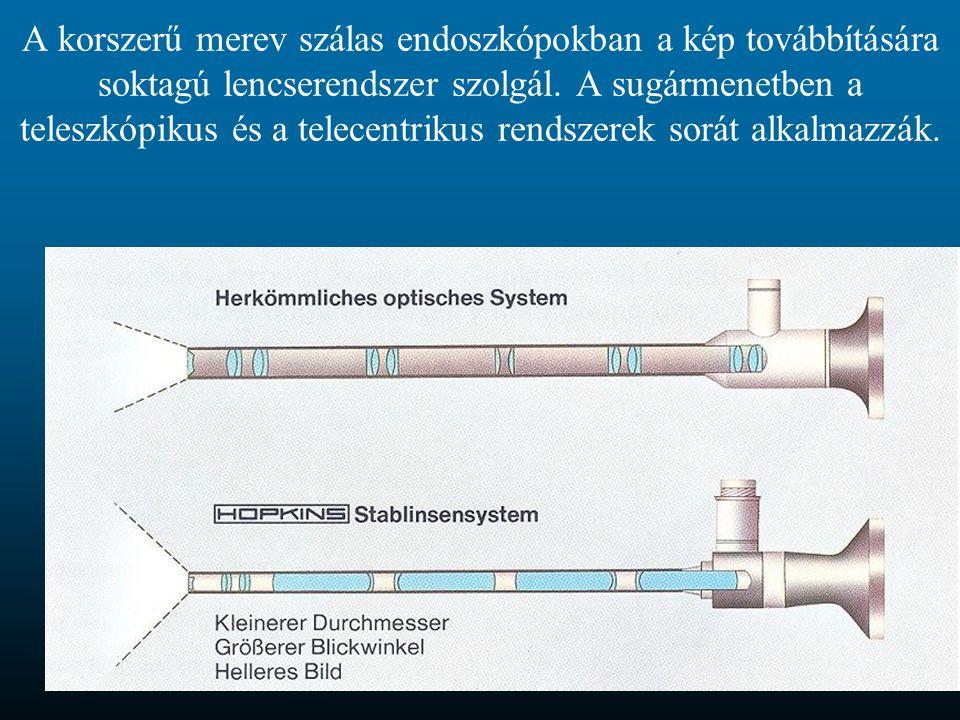 A korszerű merev szálas endoszkópokban a kép továbbítására soktagú lencserendszer szolgál. A sugármenetben a teleszkópikus és a telecentrikus rendszer
