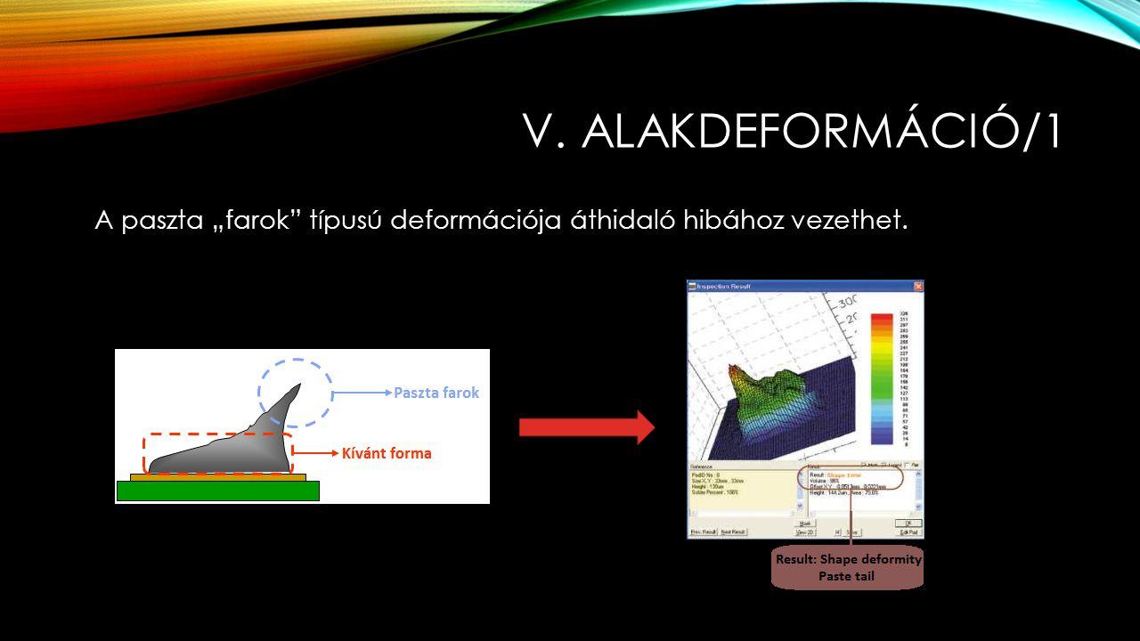 """V. ALAKDEFORMÁCIÓ/1 A paszta """"farok"""" típusú deformációja áthidaló hibához vezethet."""
