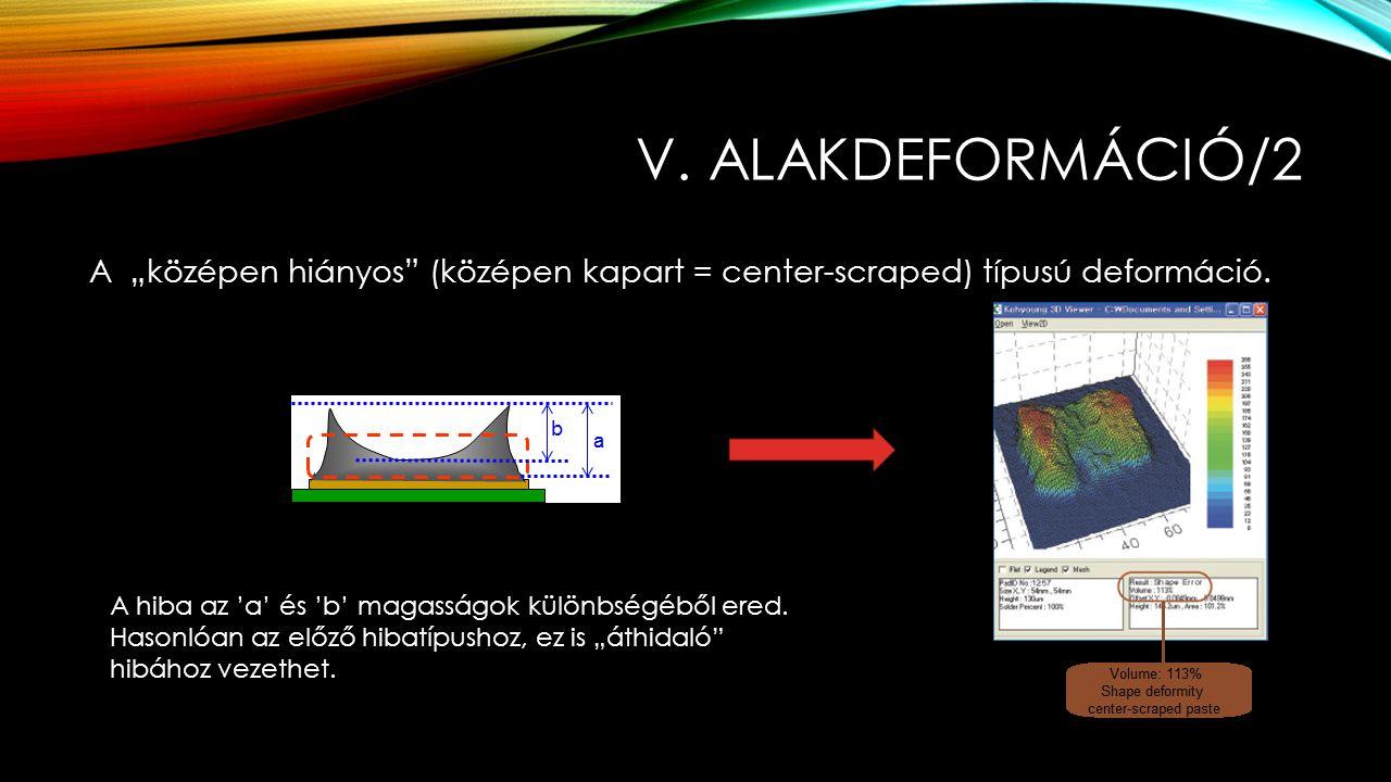 """V. ALAKDEFORMÁCIÓ/2 A """"középen hiányos"""" (középen kapart = center-scraped) típusú deformáció. A hiba az 'a' és 'b' magasságok különbségéből ered. Hason"""
