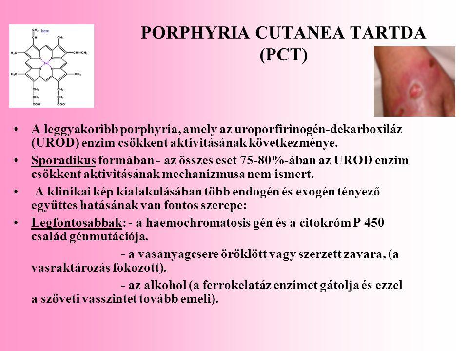 PORPHYRIA CUTANEA TARTDA (PCT) A leggyakoribb porphyria, amely az uroporfirinogén-dekarboxiláz (UROD) enzim csökkent aktivitásának következménye. Spor