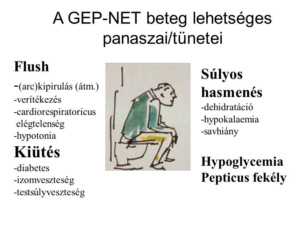 Flush - (arc)kipirulás (átm.) -verítékezés -cardiorespiratoricus elégtelenség -hypotonia Kiütés -diabetes -izomveszteség -testsúlyveszteség Súlyos hasmenés -dehidratáció -hypokalaemia -savhiány Hypoglycemia Pepticus fekély A GEP-NET beteg lehetséges panaszai/tünetei