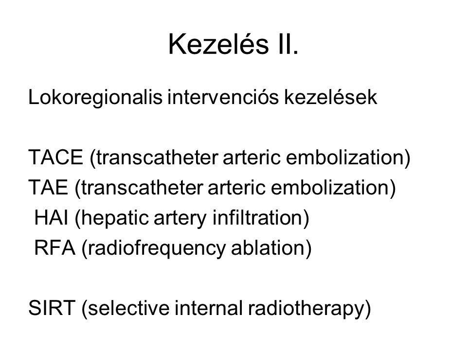 Kezelés II. Lokoregionalis intervenciós kezelések TACE (transcatheter arteric embolization) TAE (transcatheter arteric embolization) HAI (hepatic arte